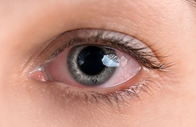 Closeup of patient with eye redness