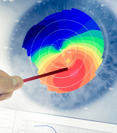 Corneal mapping technology used to design therapeutic contact lenses